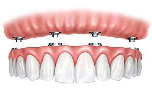 implant supported denture model