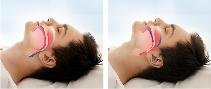 man showing sleep apnea process