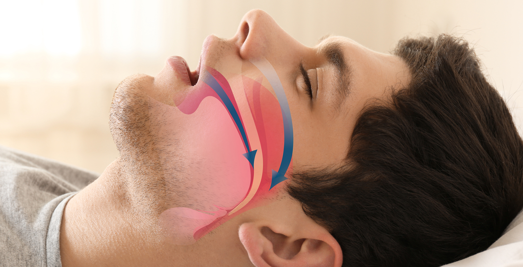man showing sleep apnea