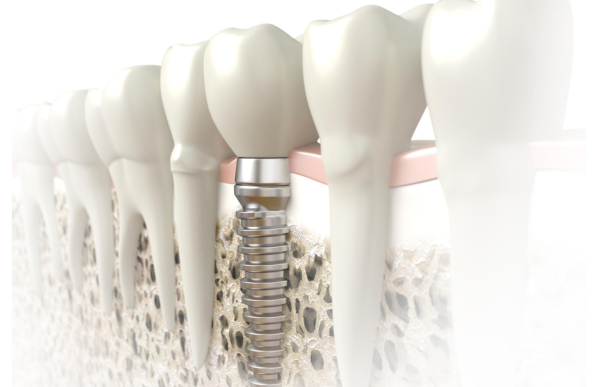 3d rendering of dental implant in bone