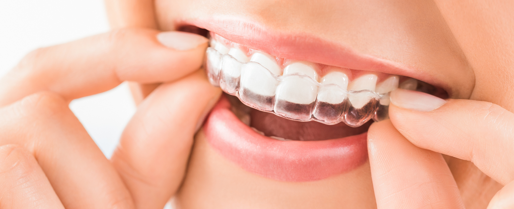 a close up of a smile showing Invisalign clear-aligner