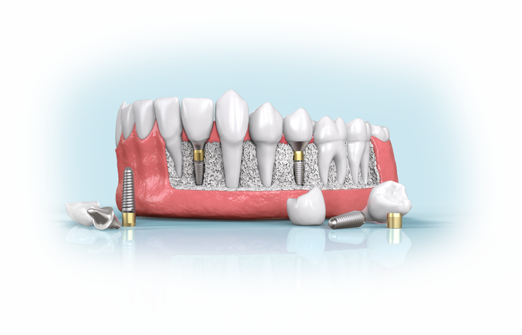 an image showing Bone Grafting For Dental Implants