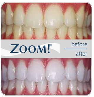 before and after zoom teeth whitening results